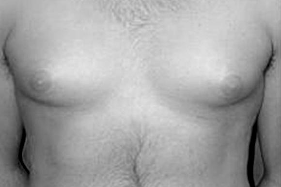 Операция по удалению гинекомастии у мужчин – показания к маммопластике у мужчин и результат