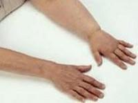 Лечение лимфостаза и его осложнений - диагностика лимфостаза