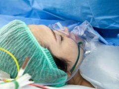 Эпидуральная анестезия при кесаревом сечении или общий наркоз - что лучше