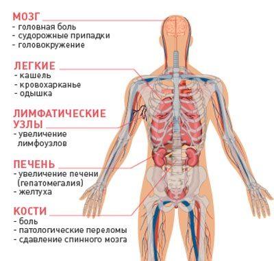 Как проявляются и чем опасны метастазы рака - причины метастазирования рака
