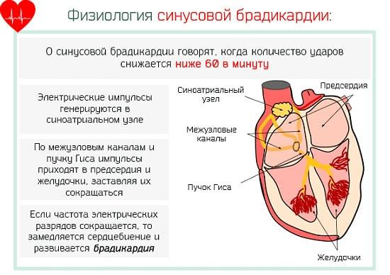 Причины и симптомы брадикардии – современная диагностика брадикардии