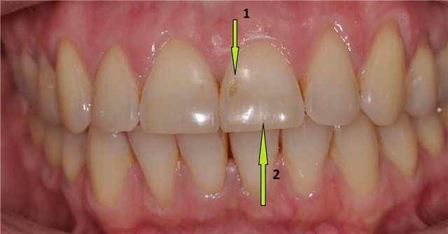 Формы эрозии зубов – современные методы лечения эрозии зубной эмали