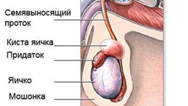 Первые признаки рака яичка у мужчин – причины рака яичек