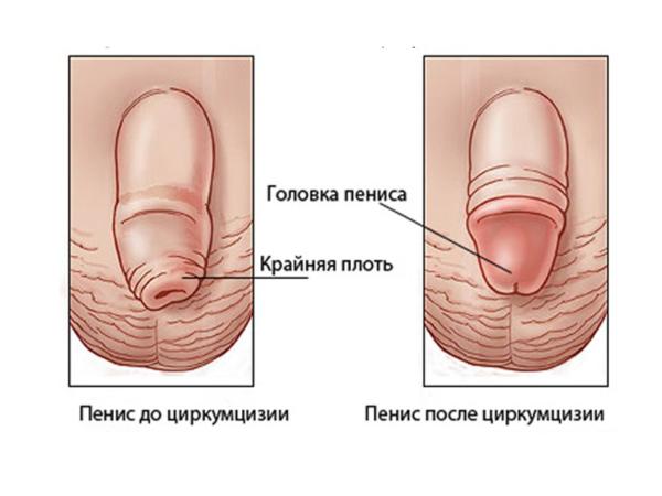 Методы лечения фимоза сегодня – в каких случаях нужна операция?