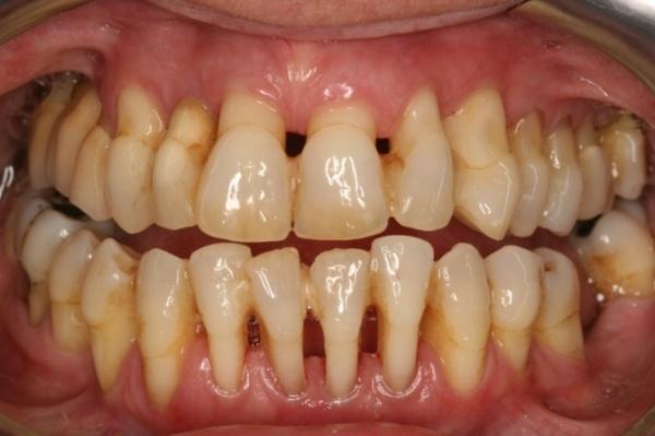 Виды лоскутных операций в стоматологии - показания, плюсы и минусы остеомукогингивальных операций