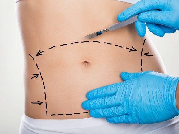 Виды пластических операций на пупке – показания к умбиликопластике и результат