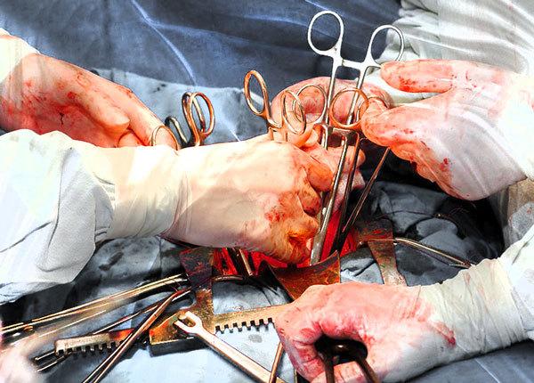 Хирургические зажимы - лучшие модели и производители зажимов