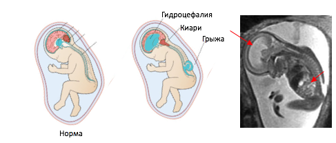 Врожденное расщепление позвоночника и грыжа у новорожденного - каковы шансы ребенка на здоровую жизнь?