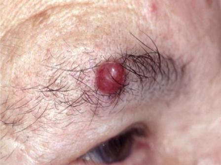 Нейроэндокринная опухоль – скрытный и опасный враг
