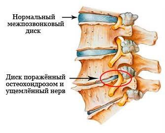 Шейный остеохондроз – истинные причины возникновения и профилактика шейного остеохондроза