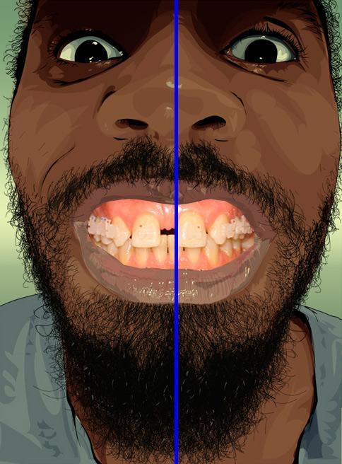Френулотомия, лечение диастемы и др. - этапы подготовки к ортодонтическому лечении зубов