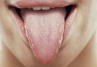 Опасен ли глоссит, и почему он возникает – все причины воспаления языка и виды глосситов