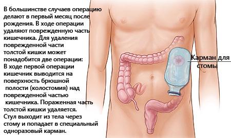 Причины и симптомы болезни Гиршпрунга – диагностика и лечение аганглиоза