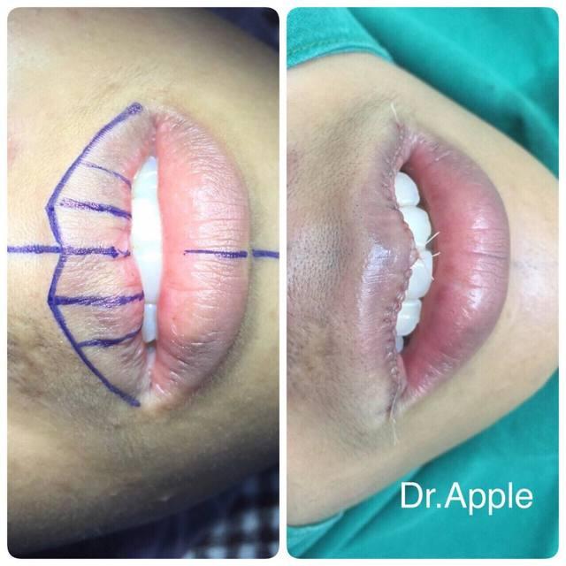 Новый тренд пластической моды – ушивание губ: особенности операции и фото до и после