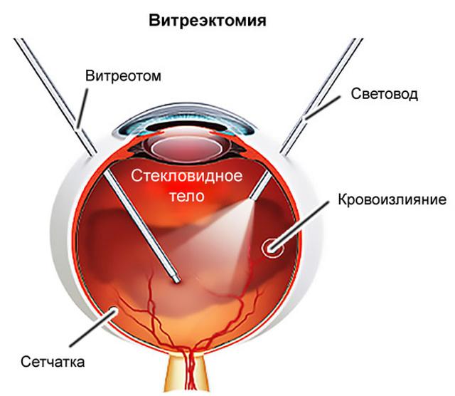 Причины абиотрофии сетчатки глаза у детей и взрослых – диагностика и лечение патологии