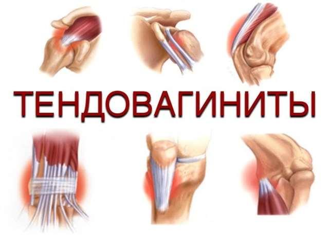 Причины тендовагинита – симптомы и клиническое течение разных видов тендовагинита