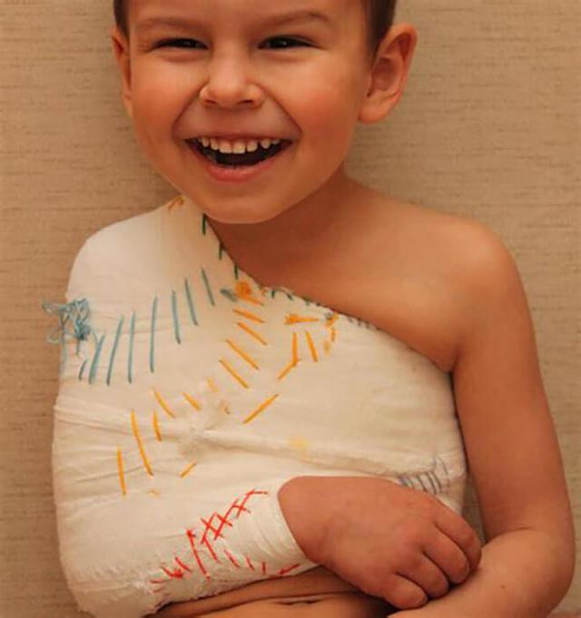 Перелом ключиц у детей - причины, симптомы и лечение