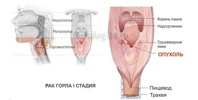 Что может спровоцировать рак гортани – основные причины, симптомы и стадии онкологии гортани