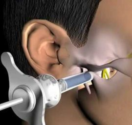 Виды анестезии – существующие методы обезболивания при операциях