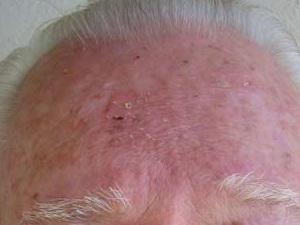 Криодеструкция кожи при раке и возможные осложнения – всё о криогенном лечении рака кожи