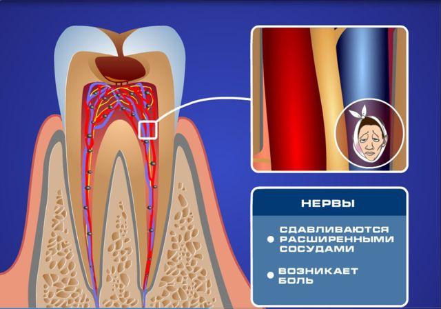 Чувствительные зубы – причины и как снять чувствительность зубов