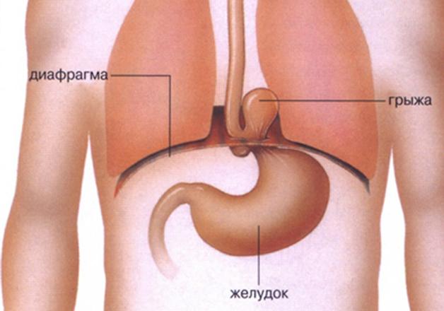 Диафрагмальные грыжи – причины развития, признаки и лечение