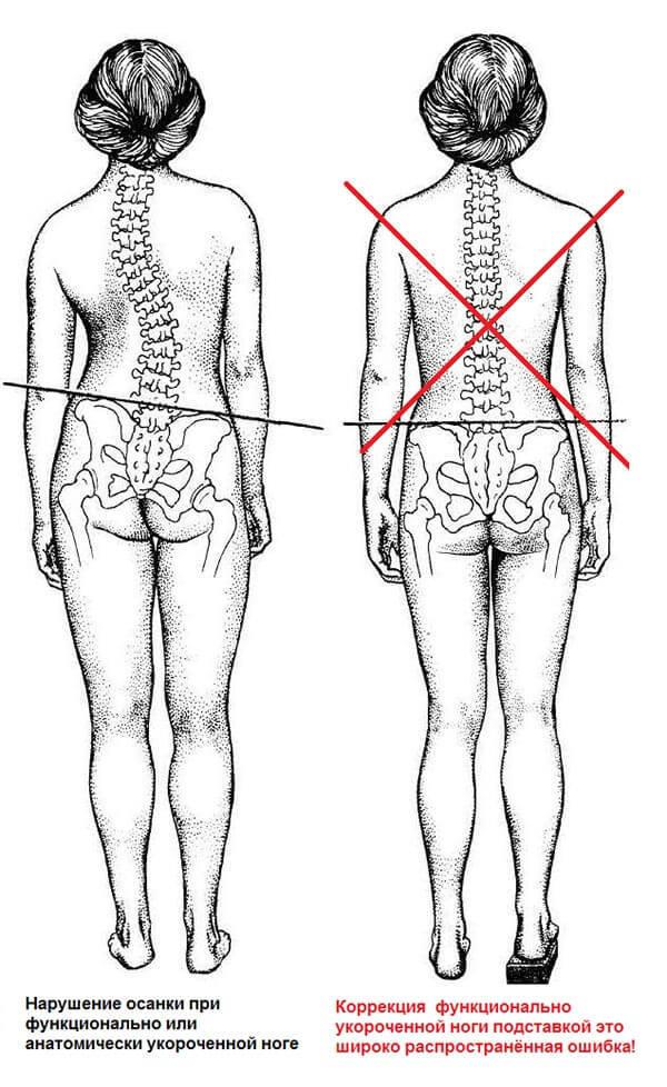 Разная длина ног - причины, патологии, коррекция