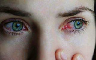 Болезнь красных глаз – заболевания с синдромом красных глаз