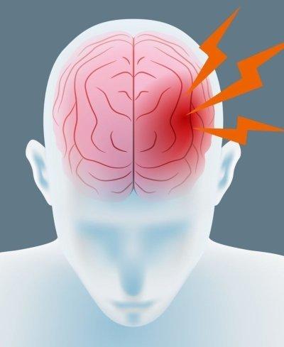 Лечение аневризмы сосудов головного мозга: операции, восстановление, прогноз