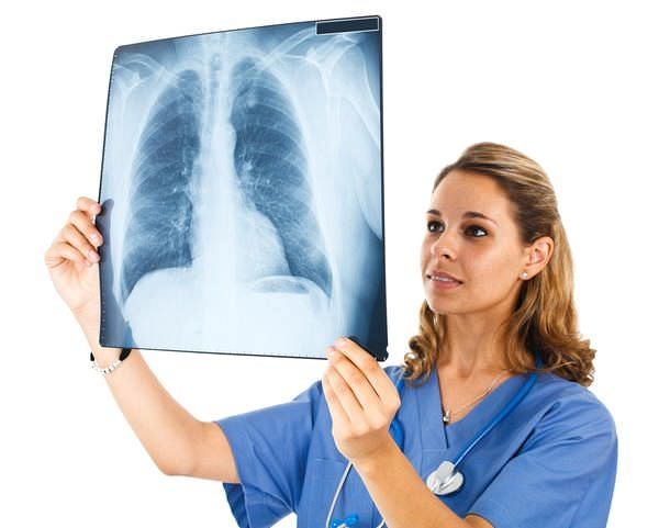 Рак легких - признаки и симптомы, методы диагностики рака легких