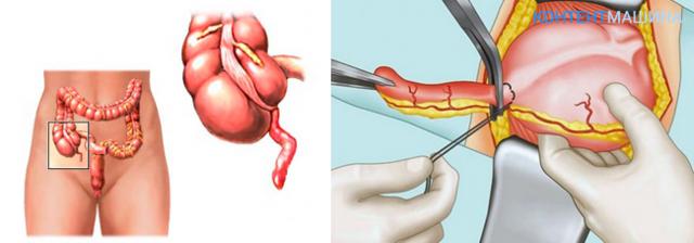 Показания для операции аппендицит, виды аппендэктомии - видео