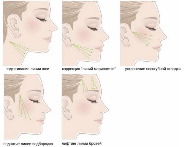 Косметические нити для лица – какие нити для подтяжки лица лучше?