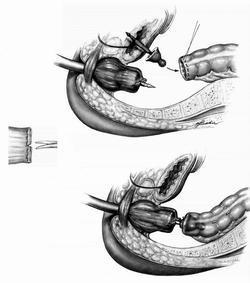 Виды и лучшие модели сшивающих аппаратов для эндоскопической и открытой хирургии