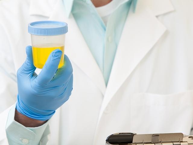Биохимический анализ крови – расшифровка показателей общего анализа мочи, все нормы в таблице