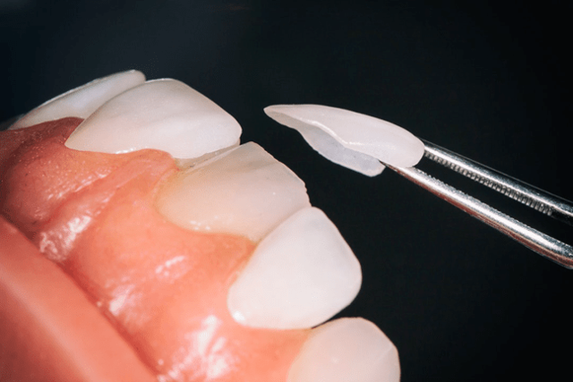 Что такое микропротезирование зубов – виды микропротезирования в стоматологии, показания, цены