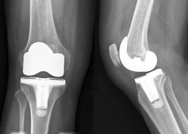 Квота на замену сустава и другие варианты бесплатного эндопротезирования в России