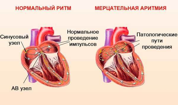 Показания и противопоказания к установке кардиостимулятора – операция