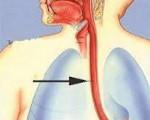 Ожог пищеварительного тракта – причины ожоговой травмы пищевода и то, что должен знать каждый о неотложной помощи