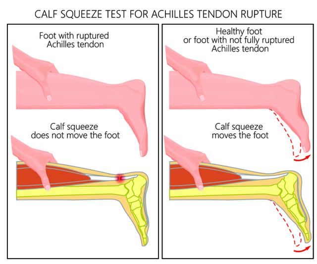 Разрыв ахиллова сухожилия и другие травмы - причины, симптомы, осложнения