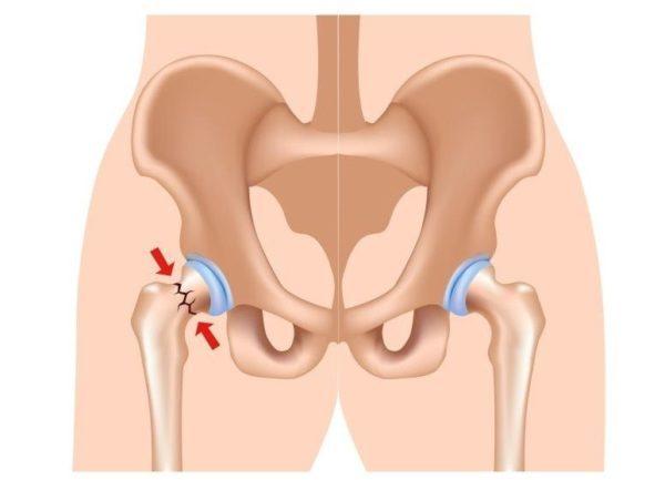 Причины и клиническая картина перелома шейки бедра - основные опасности травмы