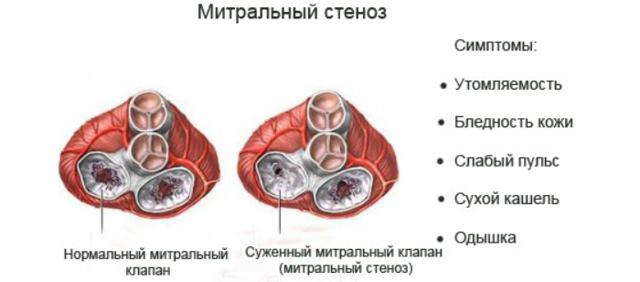 Основные симптомы врожденных пороков сердца - диагностика ВПС