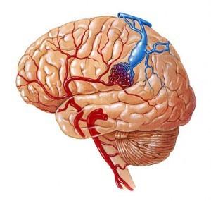 3 метода хирургического лечения мальформации сосудов головного мозга