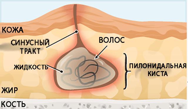 Причины эпителиального копчикового хода – симптомы и виды пилонидальных кист на копчике