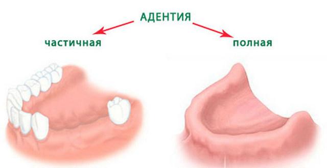 Все методы лечения адентии у взрослых и детей – как помочь при отсутствии зубов?