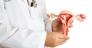 Миома матки – симптомы и признаки, основные риски
