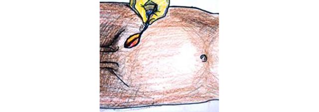 Паховая грыжа – причины развития и современные способы хирургического лечения