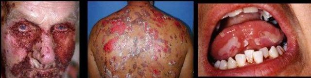 Буллезный эпидермолиз  - особенности заболевания и ухода за людьми-бабочками