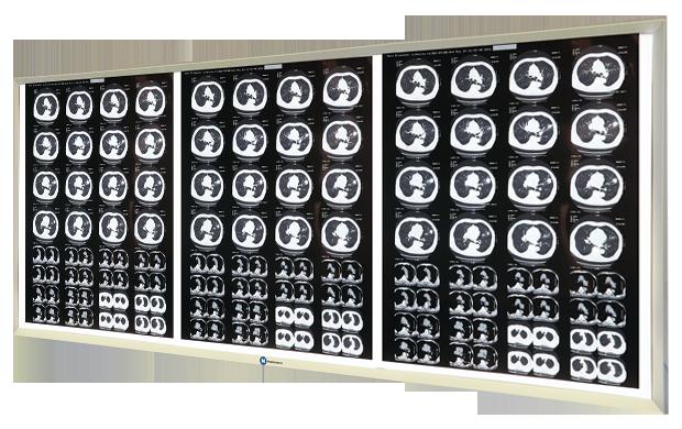 Негатоскопы – сравниваем виды и технические характеристики негатоскопов, обзор цен