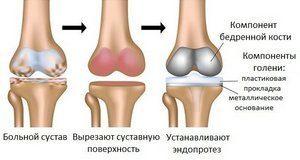 Протезы колена - виды эндопротезов коленного сустава, цены, особенности