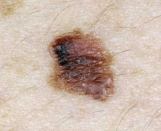 Диспластический невус на коже - причины, признаки, удаление невуса